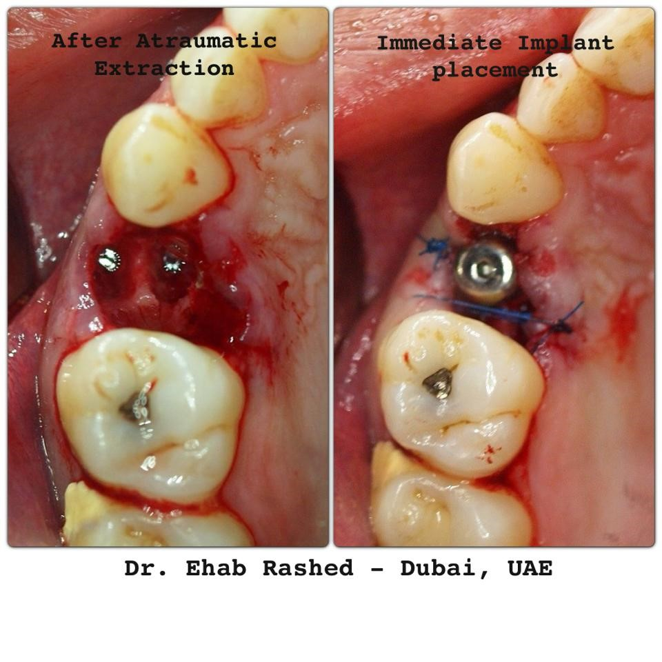 cracked root canal molar